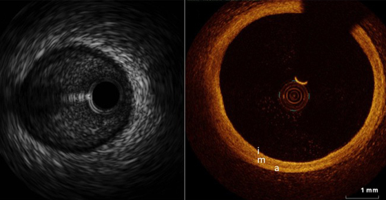 Intracoronary Imaging: When to use IVUS and OCT