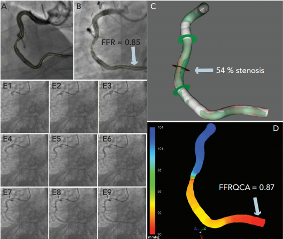 Fractional Flow Reserve Derived from Coronary Imaging and Computational Fluid Dynamics