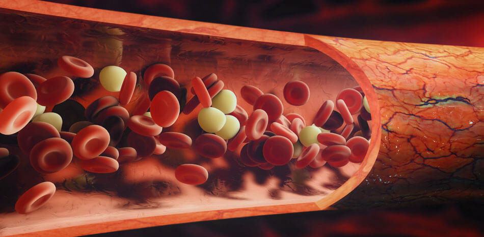 Anticoagulant Therapy for Acute Coronary Syndromes