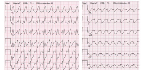 Supraventricular Arrhythmias in Adult Congenital Heart Disease