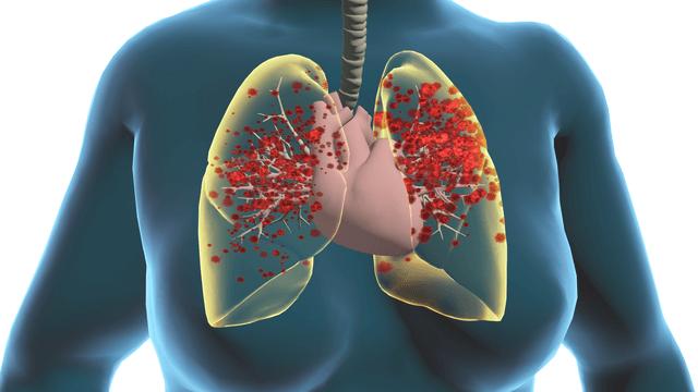 Mechanisms of Myocardial Injury in Coronavirus Disease 2019