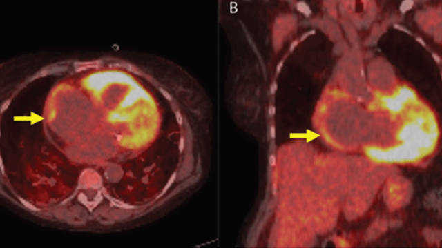 Management of Cardiac Sarcoidosis in 2020
