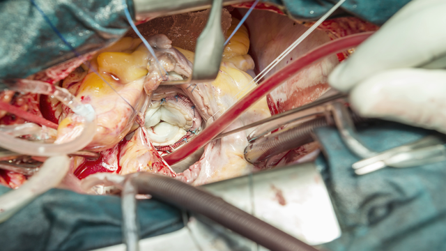 Antithrombotic Therapy After Transcatheter Aortic Valve Implantation