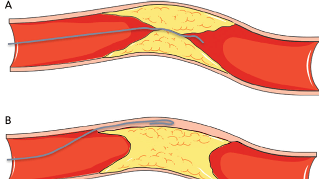 Percutaneous Coronary Intervention for Chronic Total Occlusion