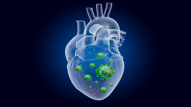 Coronavirus Disease 2019 Myocarditis: Insights into Pathophysiology and Management