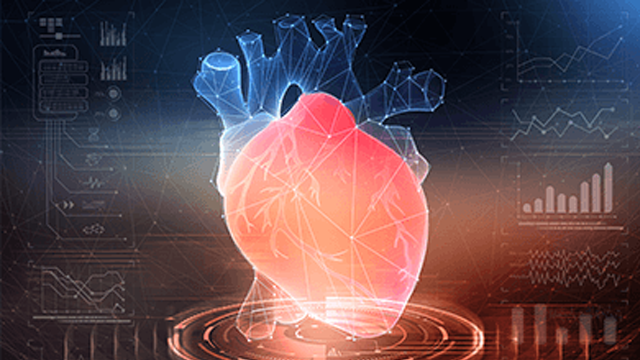 Artificial Intelligence in Cardiac Imaging