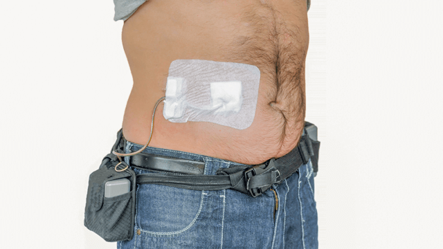 Temporary Mechanical Circulatory Support in Acute Heart Failure
