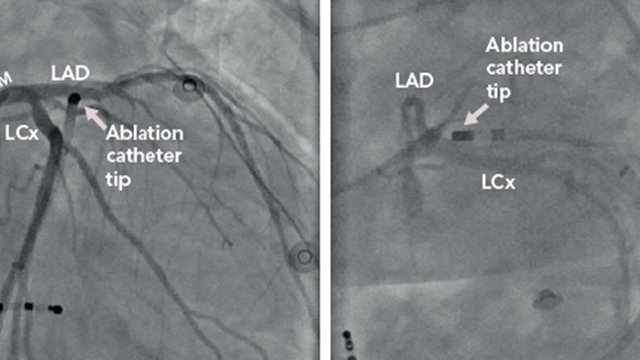 Hybrid Catheter-Based and Surgical Techniques for Ablation of Ventricular Arrhythmias