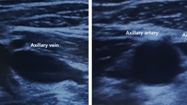 Ultrasound-guided Axillary Vein Puncture in Cardiac Lead Implantation: Time to Move to a New Standard Access?