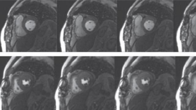 Contemporary Cardiac MRI in Chronic Coronary Artery Disease