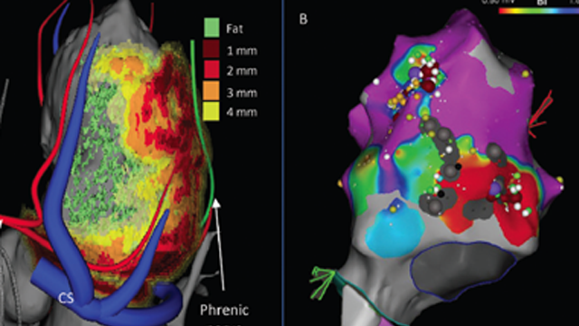Non-invasive Stereotactic Radioablation: A New Option for the Treatment of Ventricular Arrhythmias