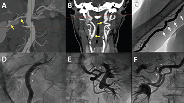 Spontaneous Coronary Artery Dissection: Mechanisms, Diagnosis and Management