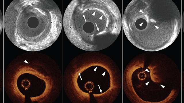 The Value of Intracoronary Imaging and Coronary Physiology When Treating Calcified Lesions