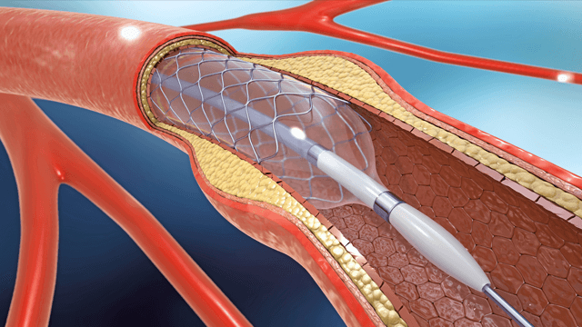 Drug-coated Balloons for Small Coronary Vessel Interventions: A Literature Review