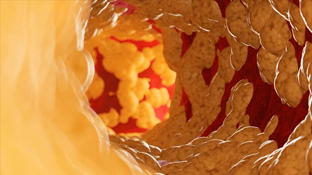 Rotational Atherectomy: A Contemporary Appraisal