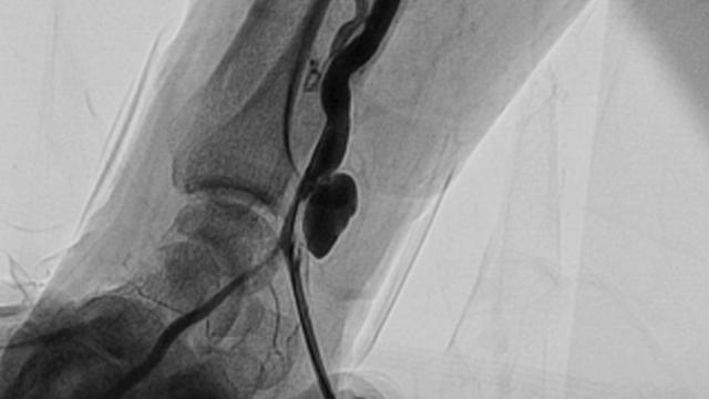 Vascular Complications of Transradial Access for Cardiac Catheterization