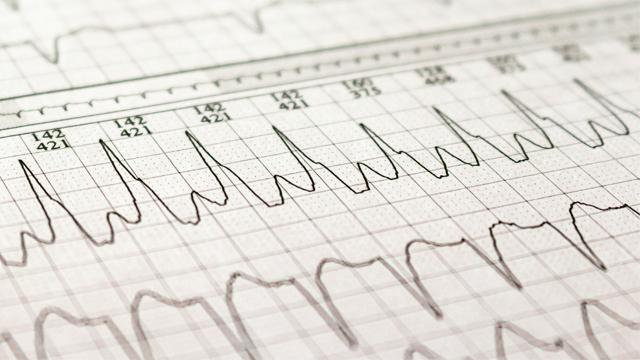 Wide Complex Tachycardia - Ventricular Tachycardia or Not Ventricular Tachycardia, That Remains the Question