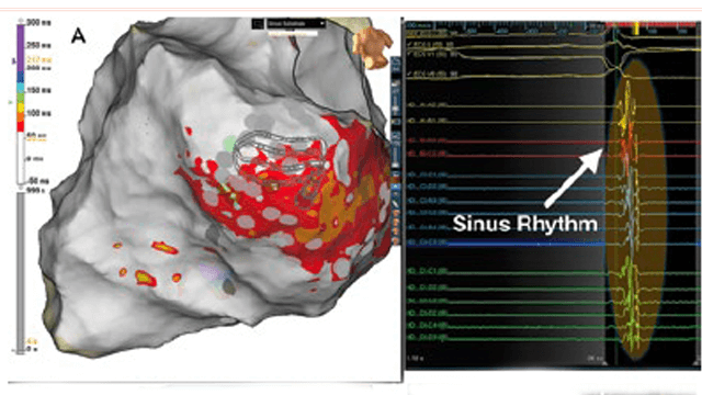 Functional Substrate Mapping of Ventricular Tachycardia