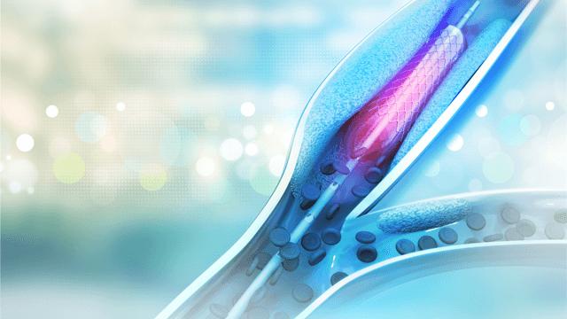 Second - versus First-generation Drug-eluting Stents