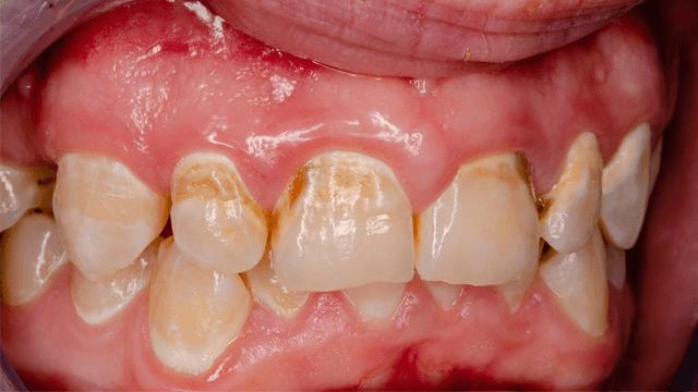Atrial Fibrillation and Oral Health