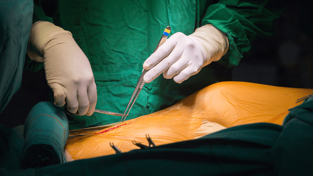 MIDCAB, TECAB and Hybrid Coronary Revascularisation Surgery