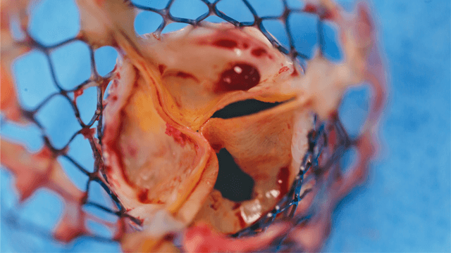 Long-term Transcatheter Aortic Valve Durability