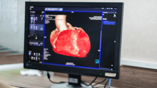 Protocol Fundamentals for Coronary Computed Tomography Angiography