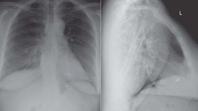 Incidental Finding of an Asymptomatic Migrated Coil to the Right Ventricle Following Pelvic Vein Embolisation