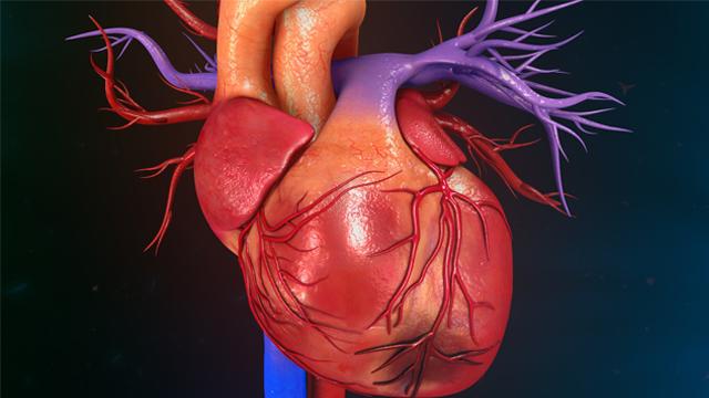Myocardial Infarction With Non-obstructive Coronary Arteries