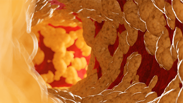 Atherosclerosis Plaque Imaging and Characterization Using Magnetic Resonance Imaging