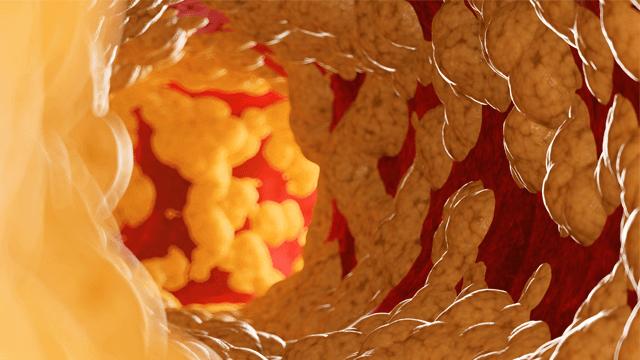 Risk Scoring in Coronary Artery Disease