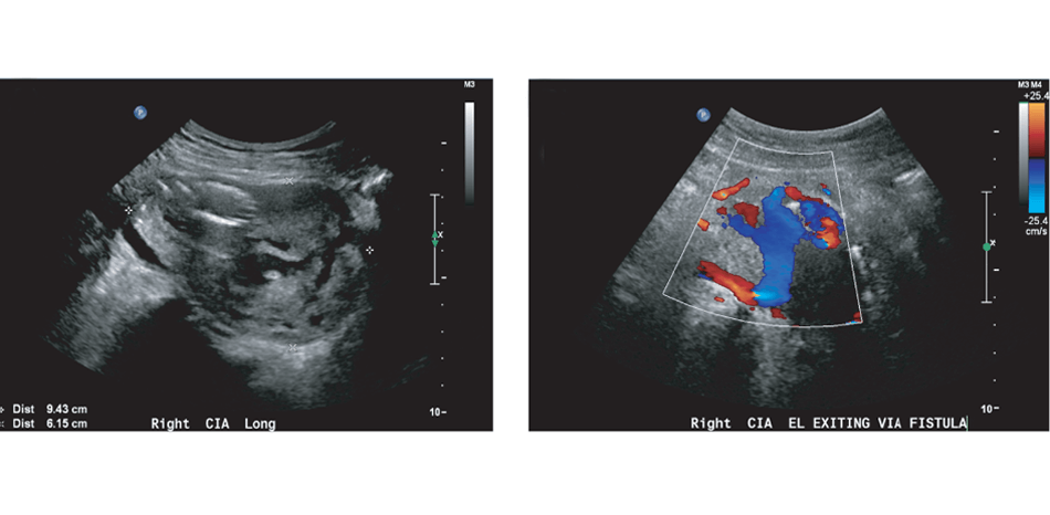 An Ilio-iliac Arteriovenous Fistula Following Spontaneous Rupture of a Right Common Iliac Artery Aneurysm