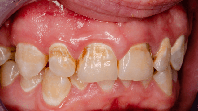 Dental Procedures in Patients with Atrial Fibrillation and New Oral Anticoagulants