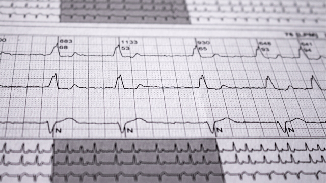 Impact of the Pattern of Atrial Fibrillation on Stroke Risk and Mortality