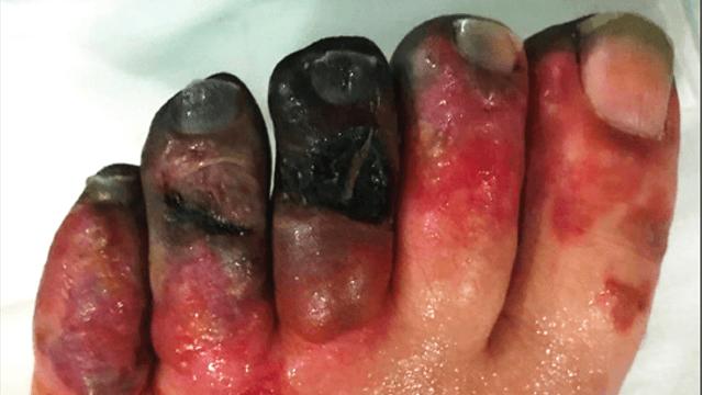 Stiff to Dilate and Risky to Cut Through: Iliac Radiation Arteritis