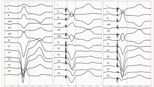 Fusion Pacing for CRT Optimisation