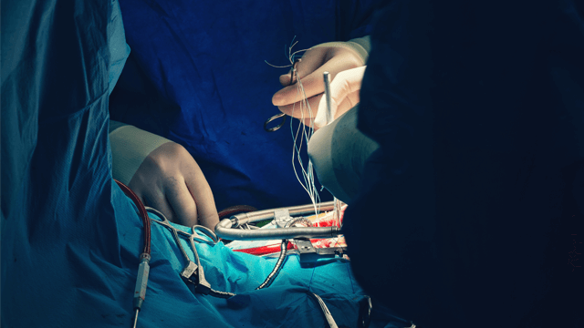Surgical Approaches to Aortic Valve Replacement and Repair