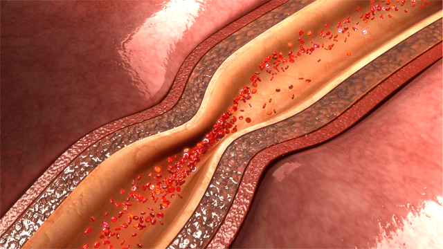 Pathophysiology and Diagnosis of Coronary Functional Abnormalities