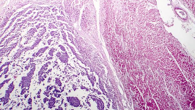 Transradial Access Left Ventricular Endomyocardial Biopsy