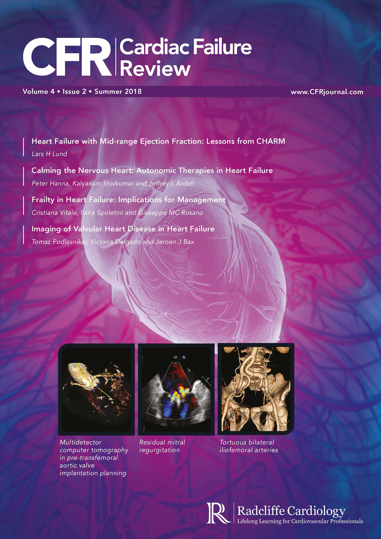 CFR - Volume 4 Issue 2 Summer 2018