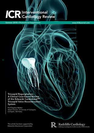 Tricuspid Regurgitation: A Clinical Case-Based Review Of The Edwards Cardioband™ Tricuspid Valve Reconstruction System