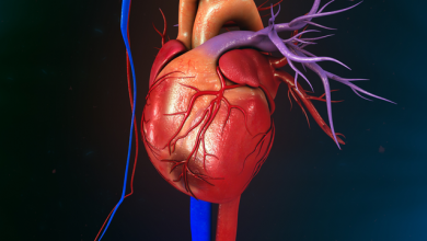 ISCHEMIA Trial and the Significance of MI