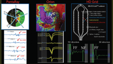 Impact of Micro-, Mini- and Multi-Electrode Mapping on Ventricular Substrate Characterisation