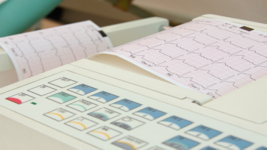 Differential Diagnosis of Wide QRS Tachycardias