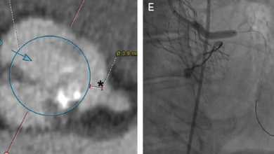 Chimney Stenting During Transcatheter Aortic Valve Implantation