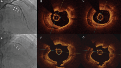 Contemporary Approach to Heavily Calcified Coronary Lesions