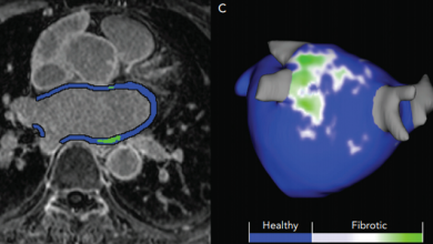 Cardiac MRI to Manage Atrial Fibrillation
