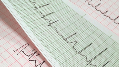 Sudden Cardiac Death and Arrhythmias
