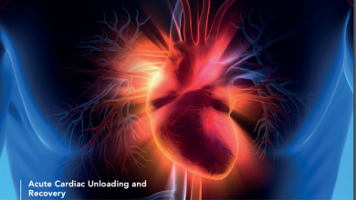 The State of the Field: Our Current Understanding of Ventricular Unloading