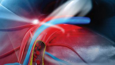 BiOSS® Clinical Programme – State of the Art – BiOSS LIM® Stent – The Novel Option for Coronary Bifurcation Treatment